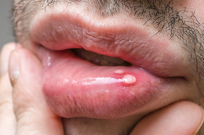 mouth sores