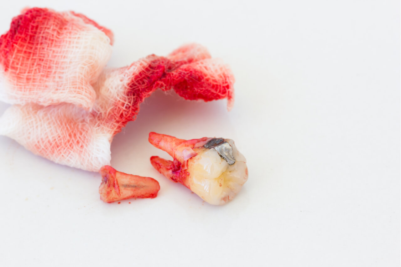 pressing a piece of gauze on the gum is the first step of how to stop bleeding after tooth extraction