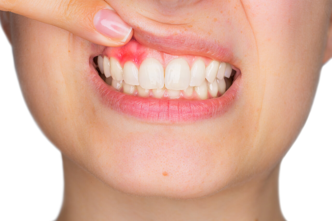 how to reduce swelling in gums